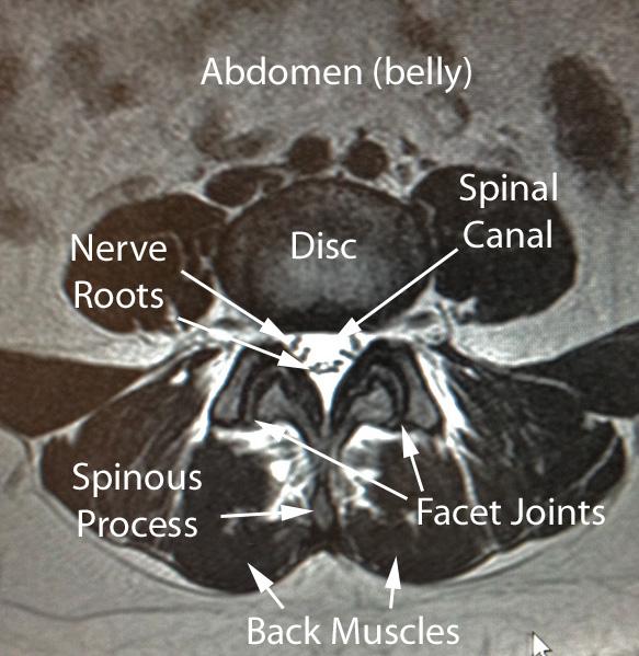 Lumbar Anatomy Drwolgin